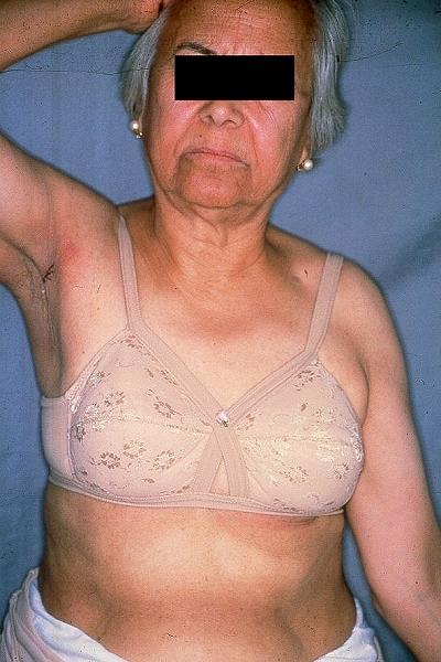 Dermatoweb Net