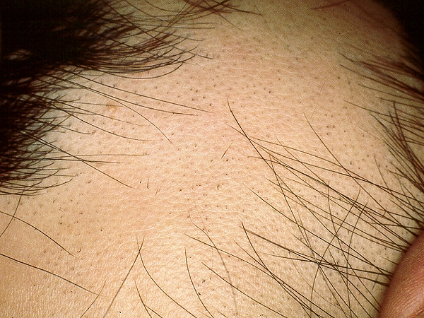 alopecia areata intralesional corticosteroid injections