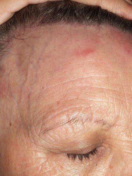 Alopecia areata | DermNet New Zealand