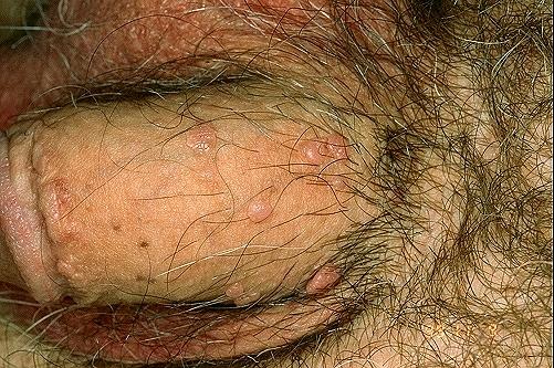 Симптомы болезни  боли в   eurolabua