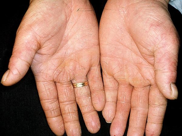 what dermatitis #11