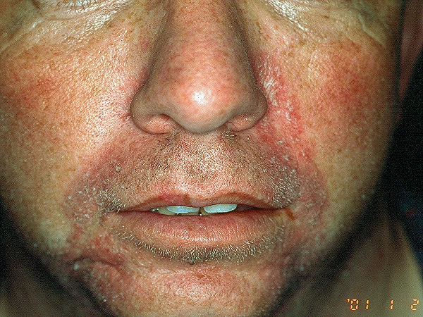 Contact Dermatitis Pictures, Images & Photos | Photobucket
