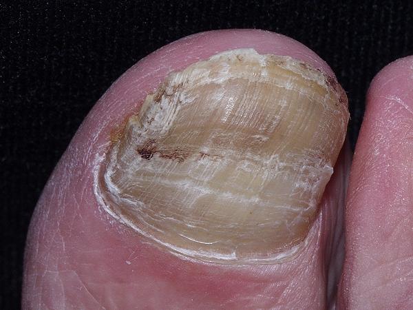 pies acompañantes masajes