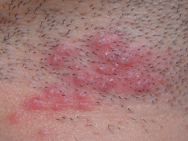 Possible herpes outbreak on shoulders and legs? | Go Ask ...