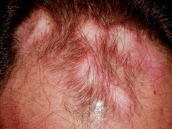 Lupus Rash - Pictures, Symptoms, Causes, Treatment ...