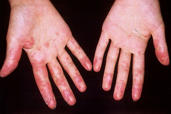 Hand Eczema | Eczema on Hands | National Eczema Association