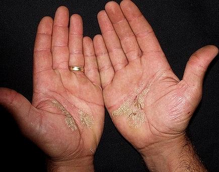 Los champúes de la psoriasis la lista