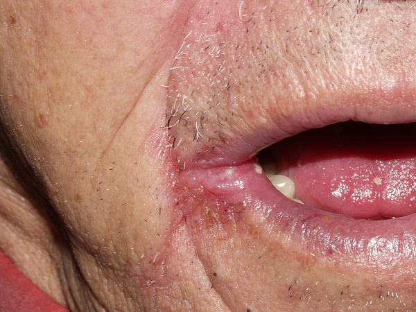thrush in mouth from steroids