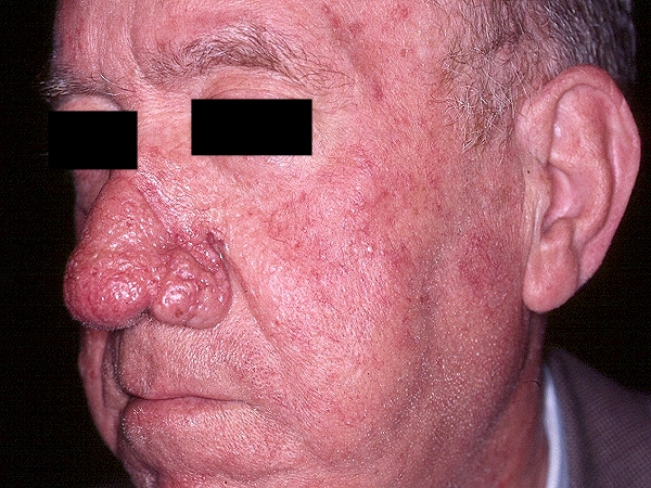Rosacea Treatment, Pictures, Causes, Diet & Triggers