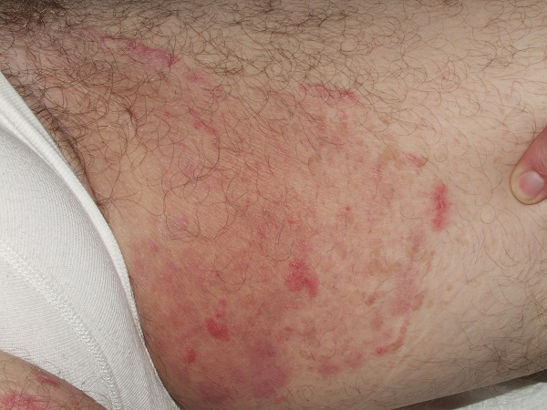 Types Of Fungal Rash On Buttocks : Its Symptoms And