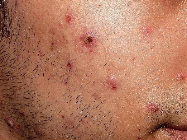 Enfermedad varicela síntomas y causas síntomas y tratamiento