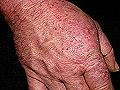 Dermatitis interdigital bovina tratamiento