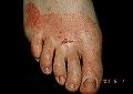 El tratamiento del hongo de las uñas por las pastillas lamizil